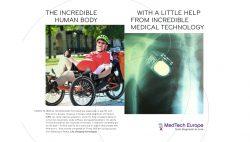 MTE2 Tony Campaign